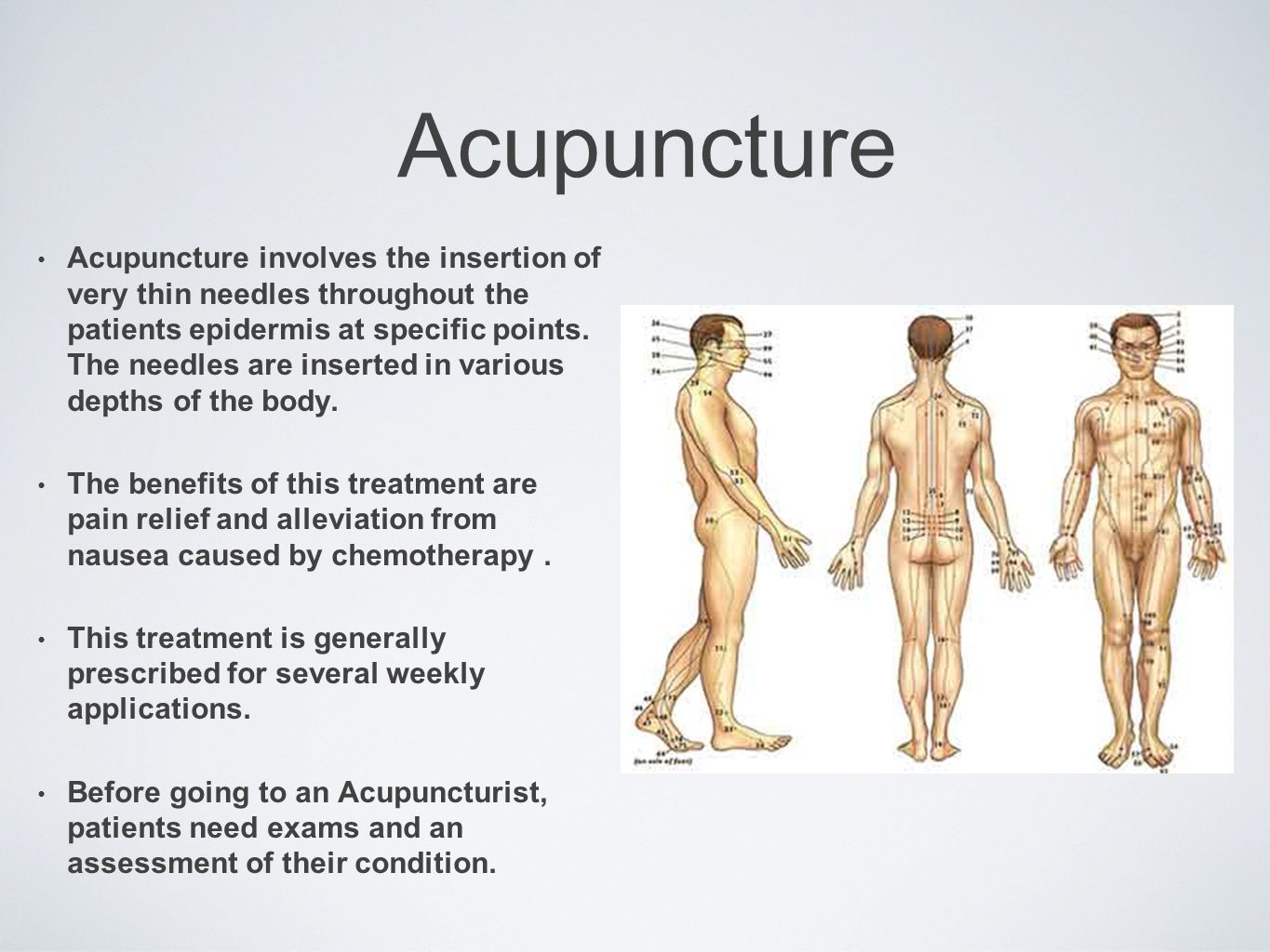 Acupuncture Acupuncture involves the insertion of very thin needles throughout the patients epidermis at specific points.