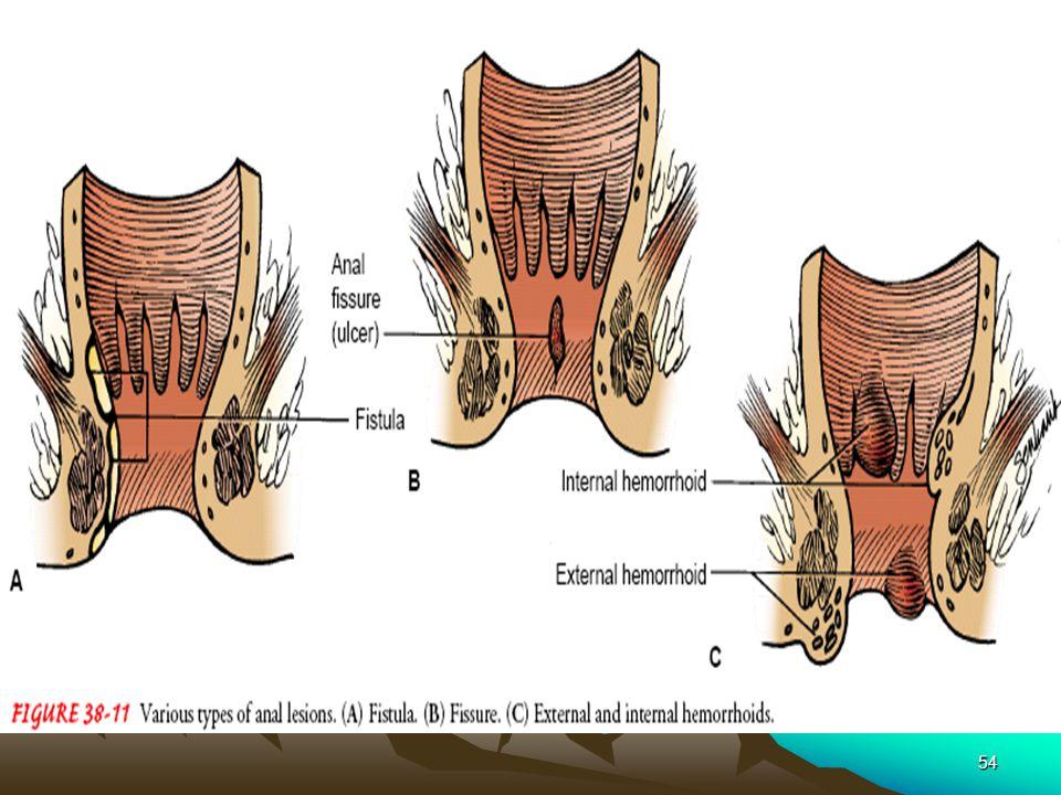 Anal lesion exterior define — img 15
