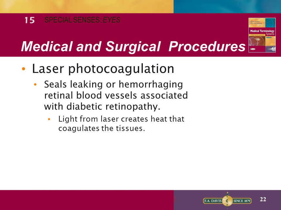 22 Medical and Surgical Procedures Laser photocoagulation Seals leaking or  hemorrhaging retinal blood vessels associated with