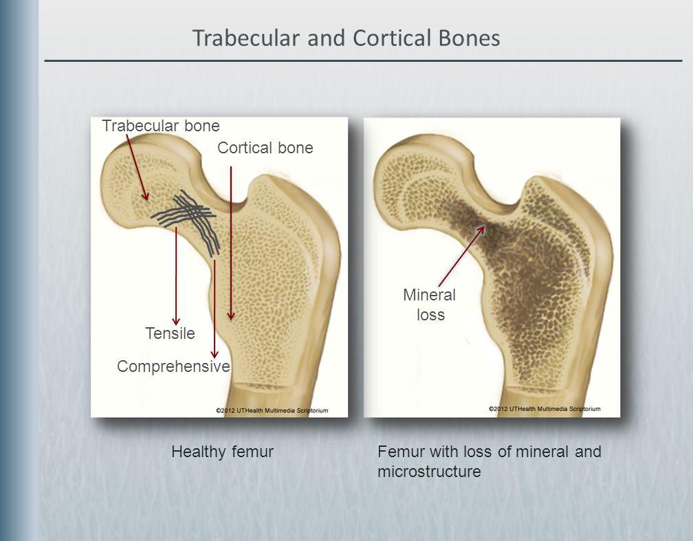 Osteoporosis Educational Series Lecture 2of 3 Understanding Bone