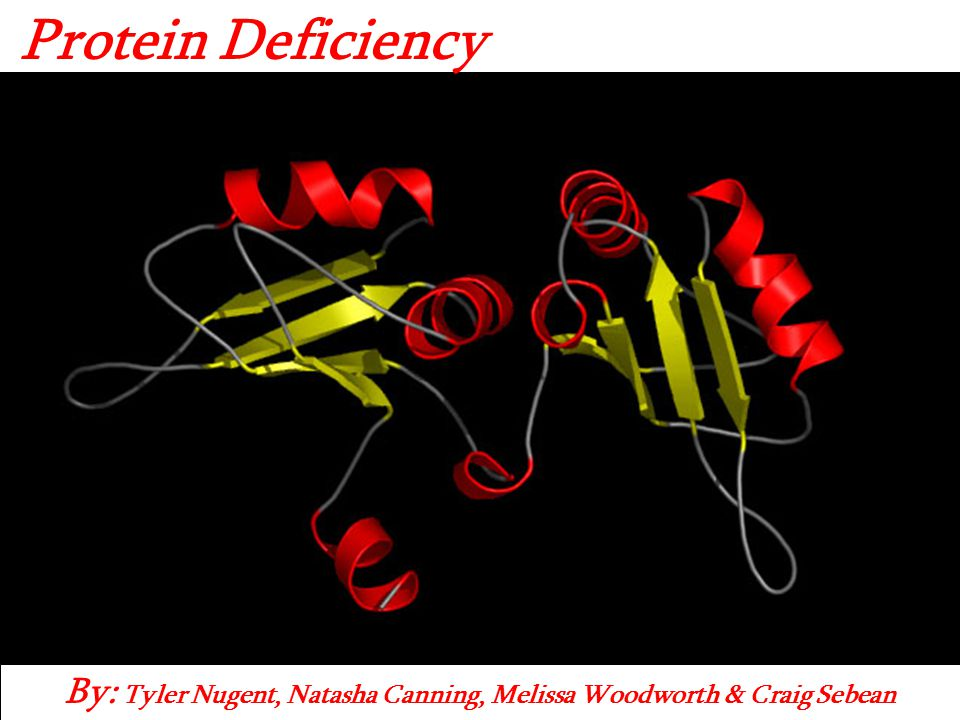 By: Tyler Nugent, Natasha Canning, Melissa Woodworth & Craig Sebean Protein Deficiency