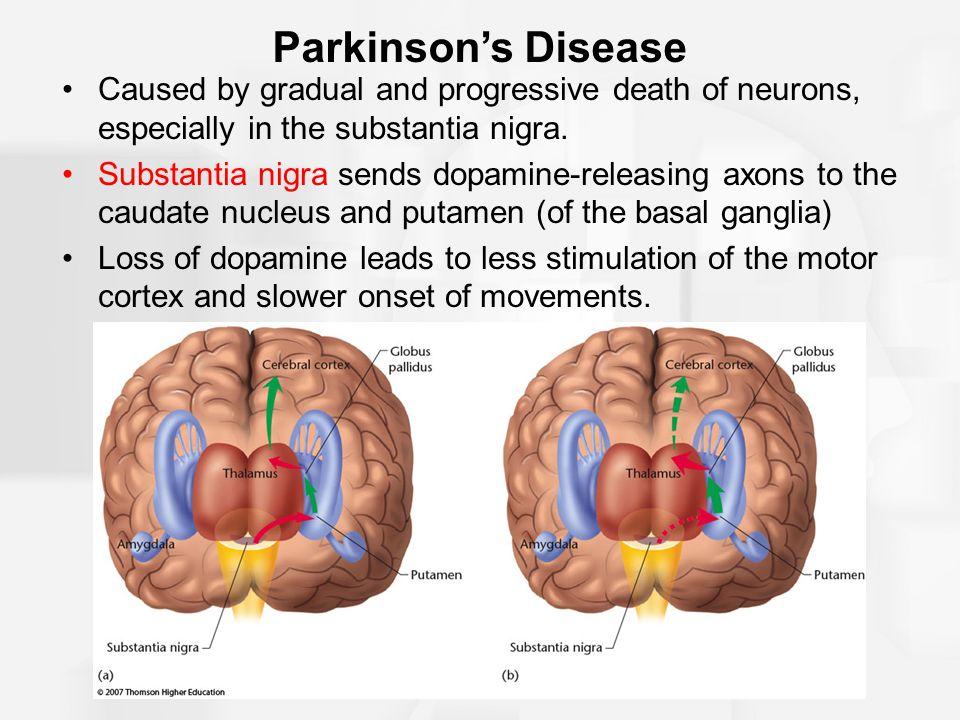 Module 7.3 Movement Disorders. Parkinson\'s Disease A neurological ...