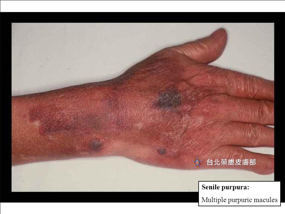 Senile purpura: Multiple purpuric macules Idiopathic