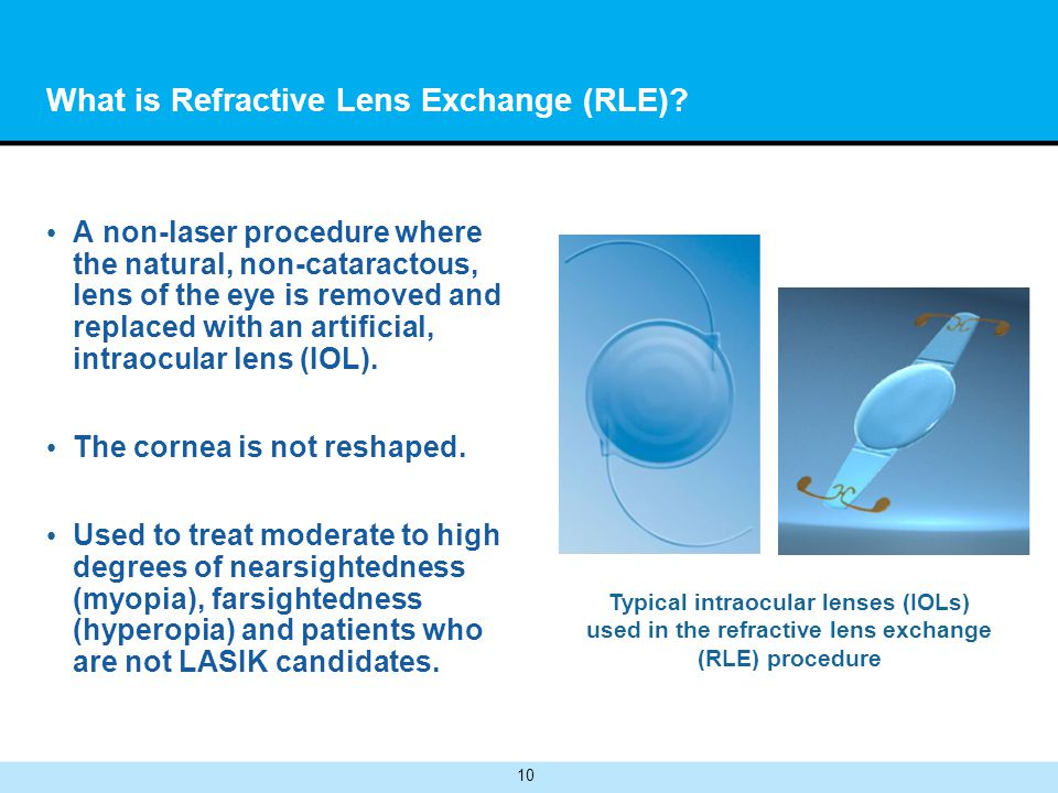 10 What is Refractive Lens Exchange (RLE).