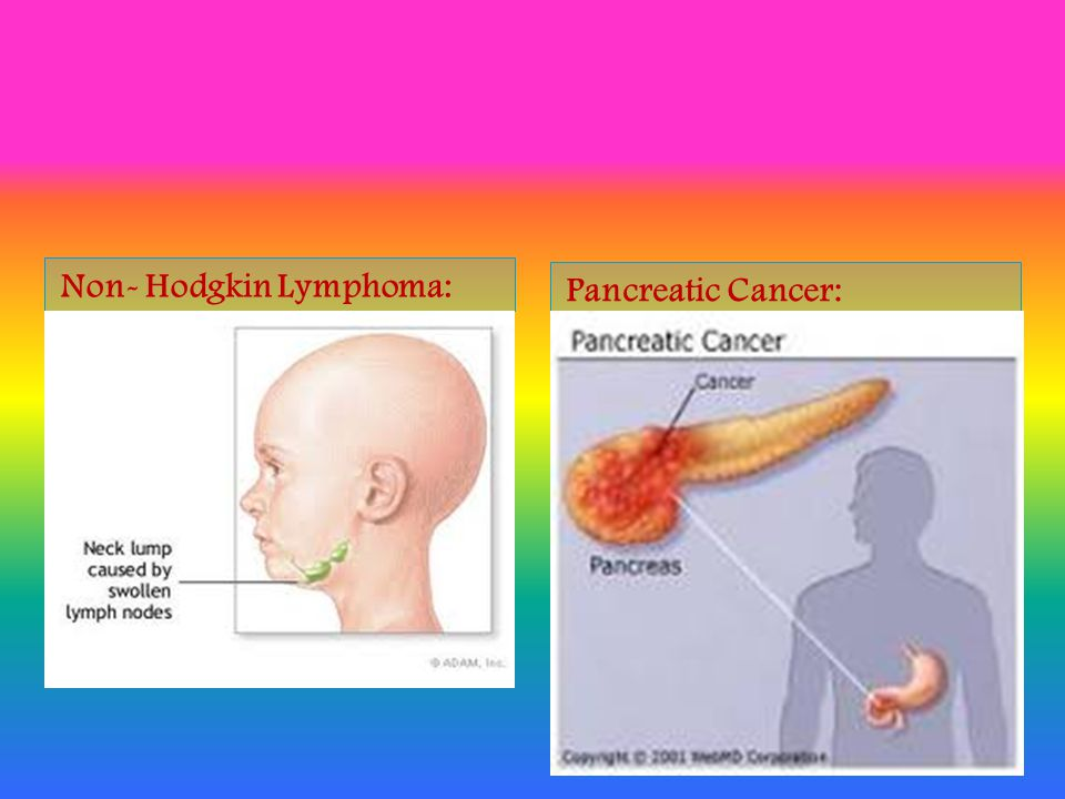 Main Cancer types: Lung Cancer: Melanoma: