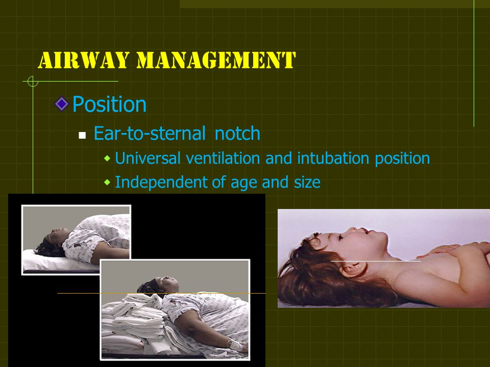 Airway management Position Ear-to-sternal notch  Universal ventilation and intubation position  Independent of age and size