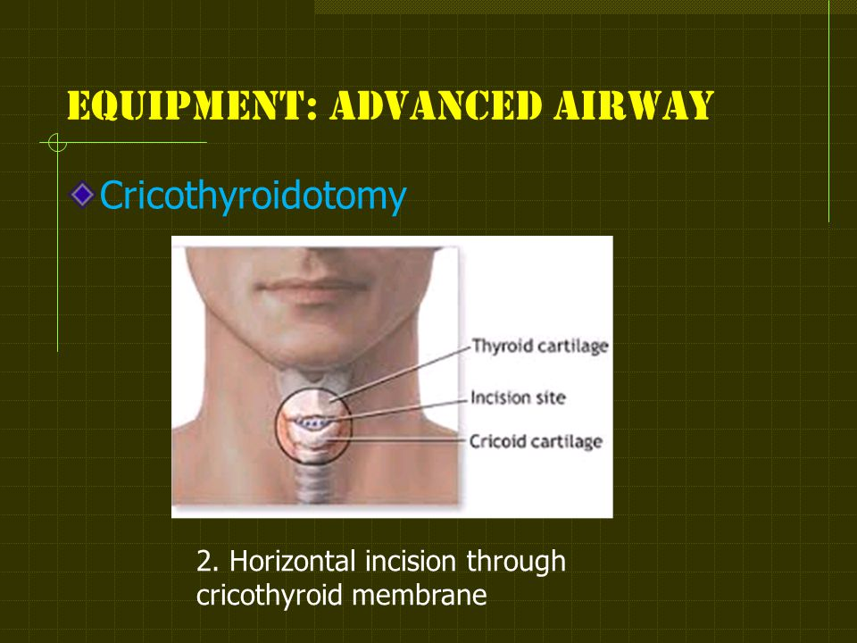 Equipment: advanced airway 2. Horizontal incision through cricothyroid membrane Cricothyroidotomy