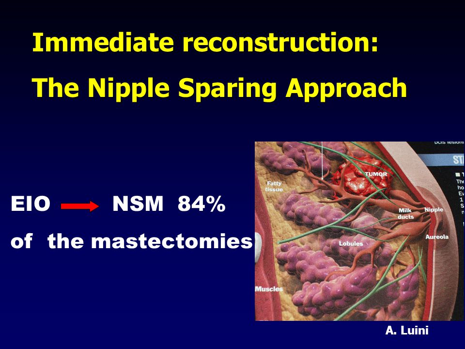 Immediate reconstruction: The Nipple Sparing Approach EIO NSM 84% of the mastectomies A. Luini