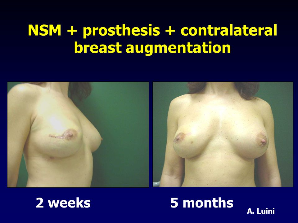 NSM + prosthesis + contralateral breast augmentation 2 weeks 5 months A. Luini