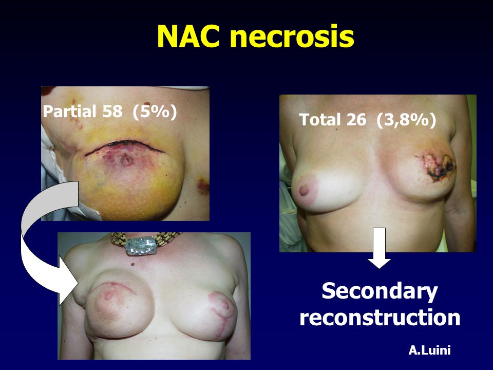 NAC necrosis Partial 58 (5%) Total 26 (3,8%) Secondary reconstruction A.Luini