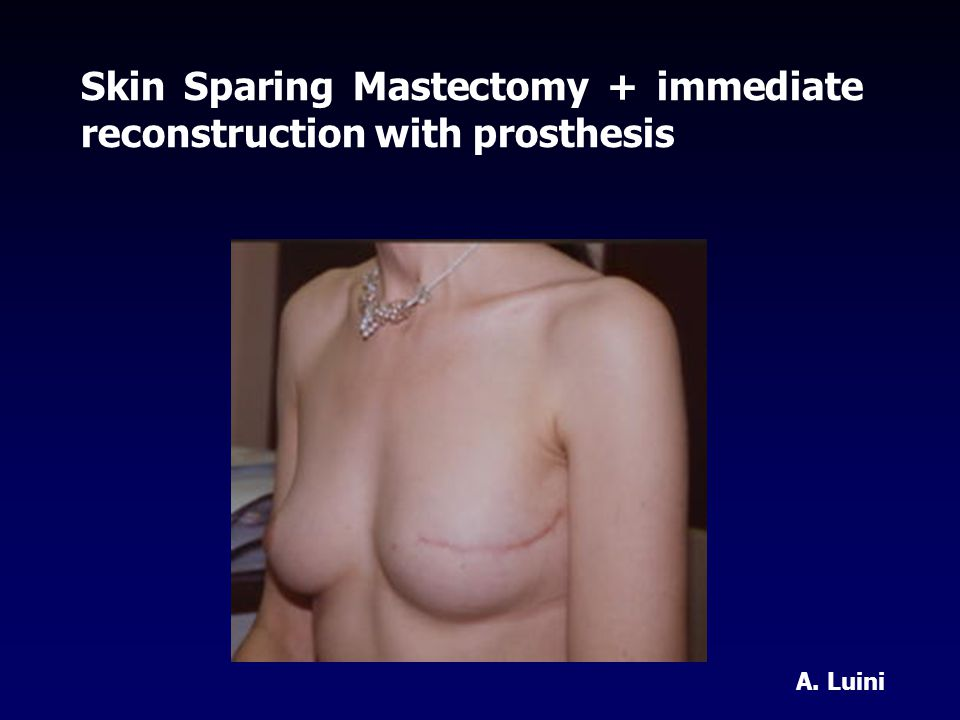Skin Sparing Mastectomy + immediate reconstruction with prosthesis A. Luini