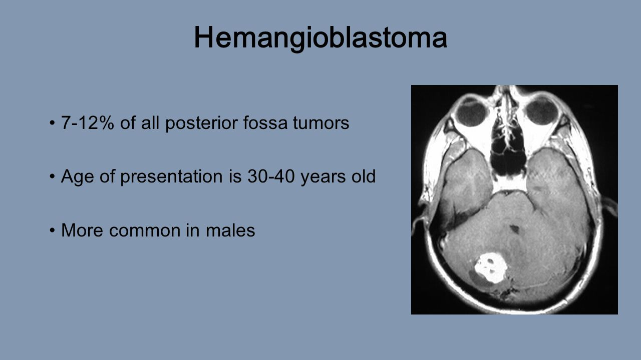 Review: Posterior Fossa Anatomy and Tumors David Halevi. - ppt download