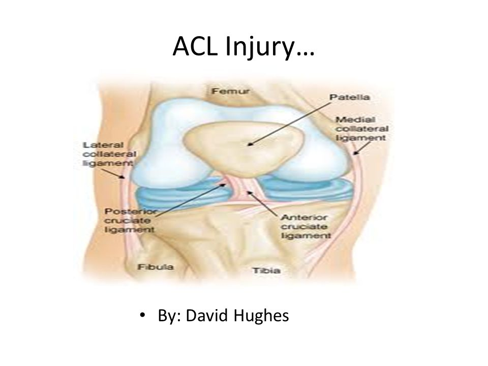 Acl Injury By David Hughes Symptoms There Are Only A Few