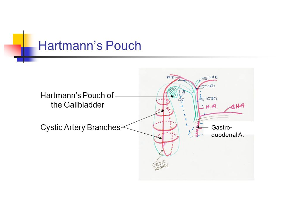 Hartmann's Pouch Hartmann's Pouch of the Gallbladder Cystic Artery Branches Gastro- duodenal A.