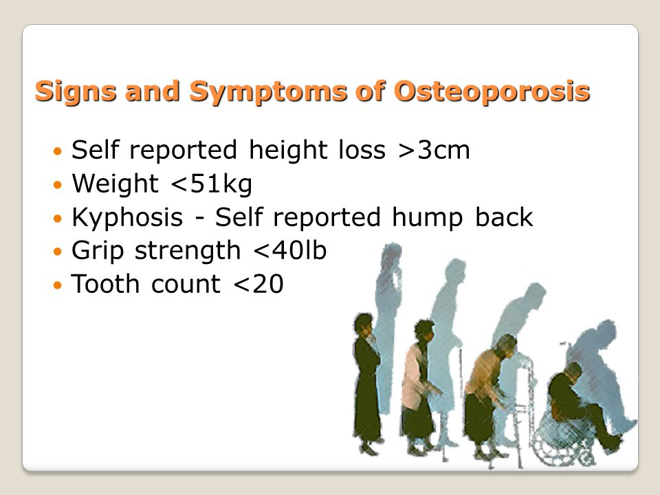 Signs and Symptoms of Osteoporosis Self reported height loss >3cm Weight <51kg Kyphosis - Self reported hump back Grip strength <40lb Tooth count <20