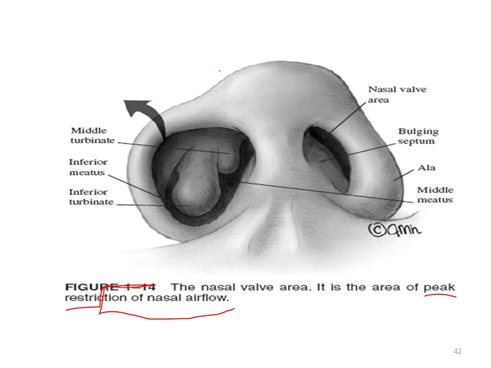 Anatomy Of Internal Nose Pns In Relation To Endoscopic Surgery