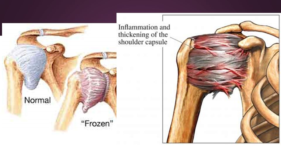 Glenohumeral Joint Amber Robbins. Classification ○ Synovial ...