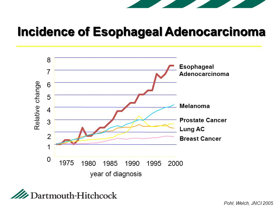 Incidence of Esophageal Adenocarcinoma year of diagnosis Relative change Esophageal Adenocarcinoma Lung AC Prostate Cancer Breast Cancer Melanoma Pohl, Welch, JNCI 2005