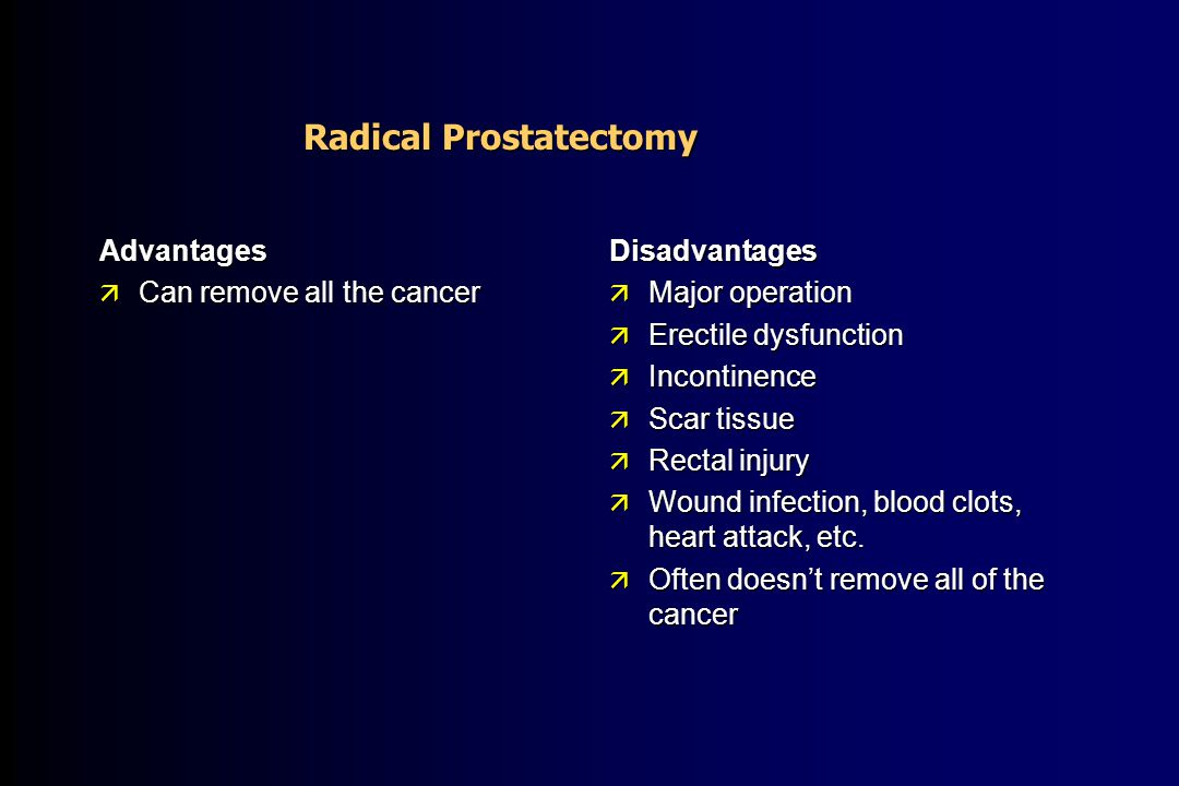 Prostate Cancer Causes Diagnosis And Treatment Options Bruce B