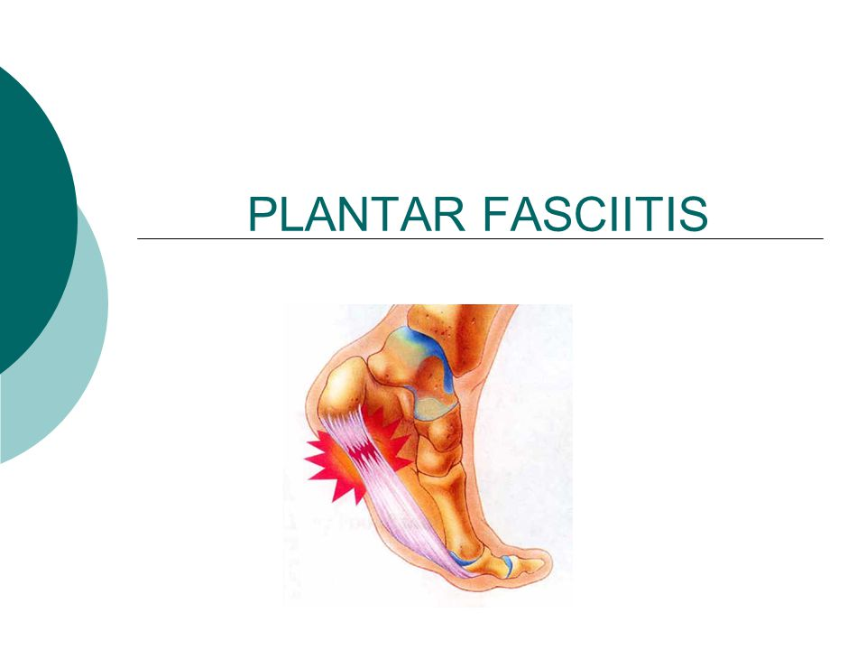 PLANTAR FASCIITIS. Patho-physiology  Repeated tensile and ...