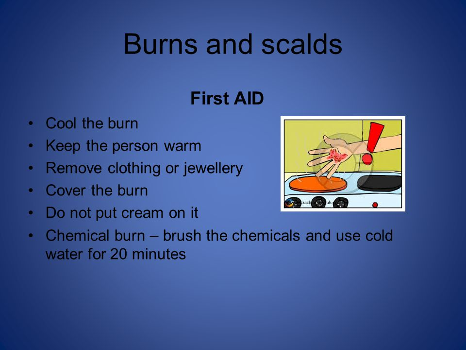 Burns and scalds First AID Cool the burn Keep the person warm Remove clothing or jewellery Cover the burn Do not put cream on it Chemical burn – brush the chemicals and use cold water for 20 minutes