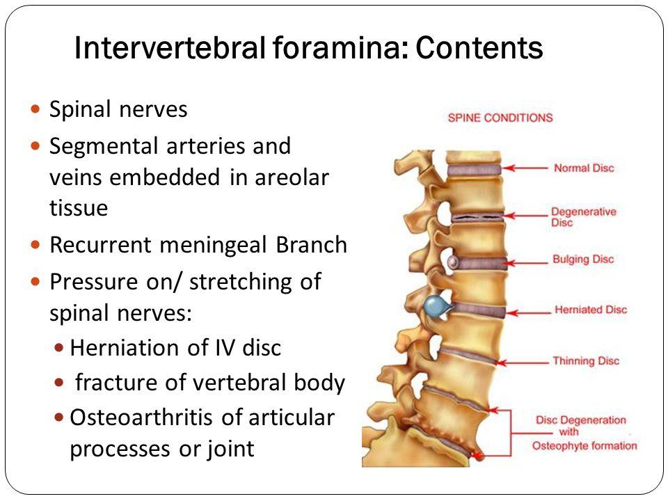 Intervertebral Foramina   www.imagenesmy.com