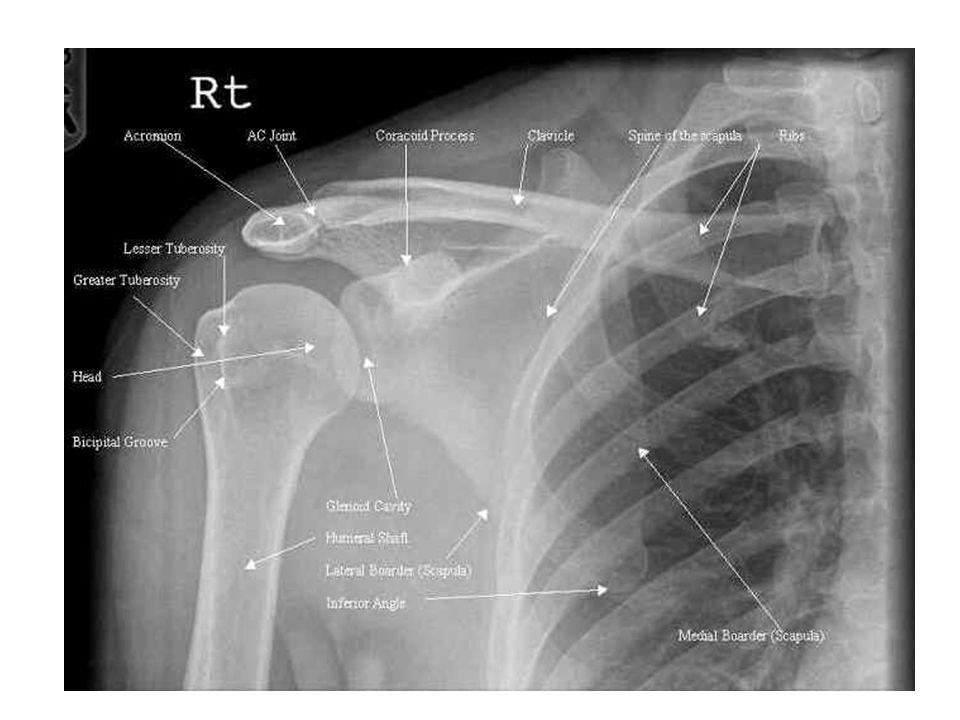 Radiographic Anatomy Rad Ppt Video Online Download
