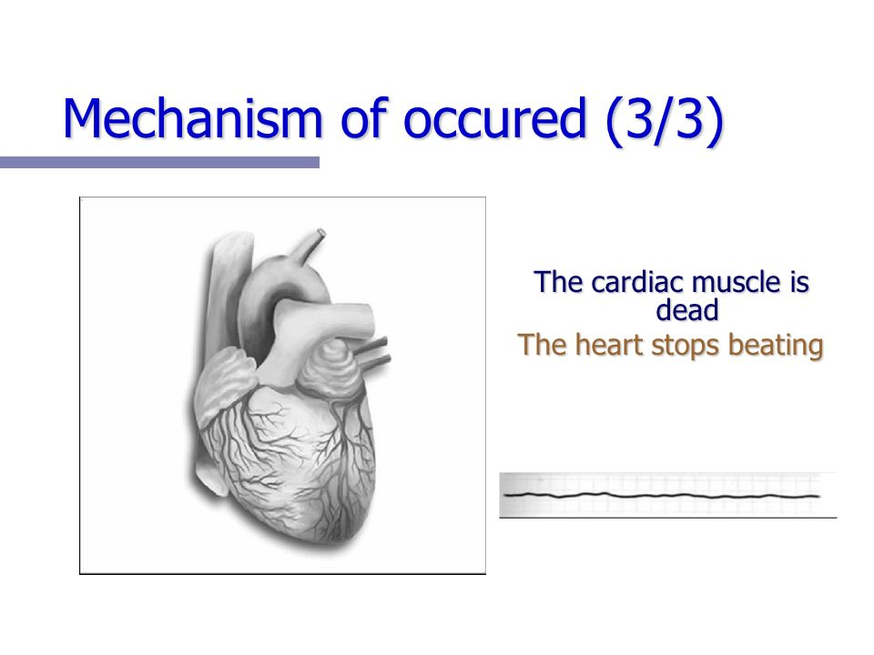 Mechanism of occured (3/3) The cardiac muscle is dead The heart stops beating
