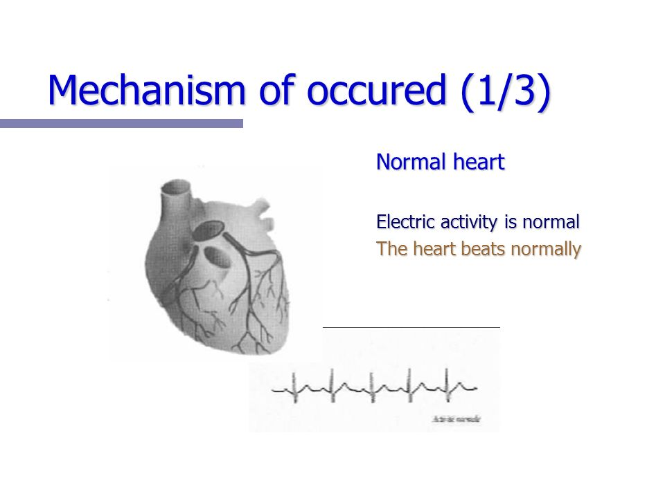 Mechanism of occured (1/3) Normal heart Electric activity is normal The heart beats normally