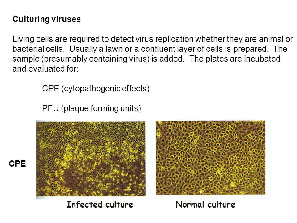 Culturing viruses Living cells are required to detect virus replication whether they are animal or bacterial cells.