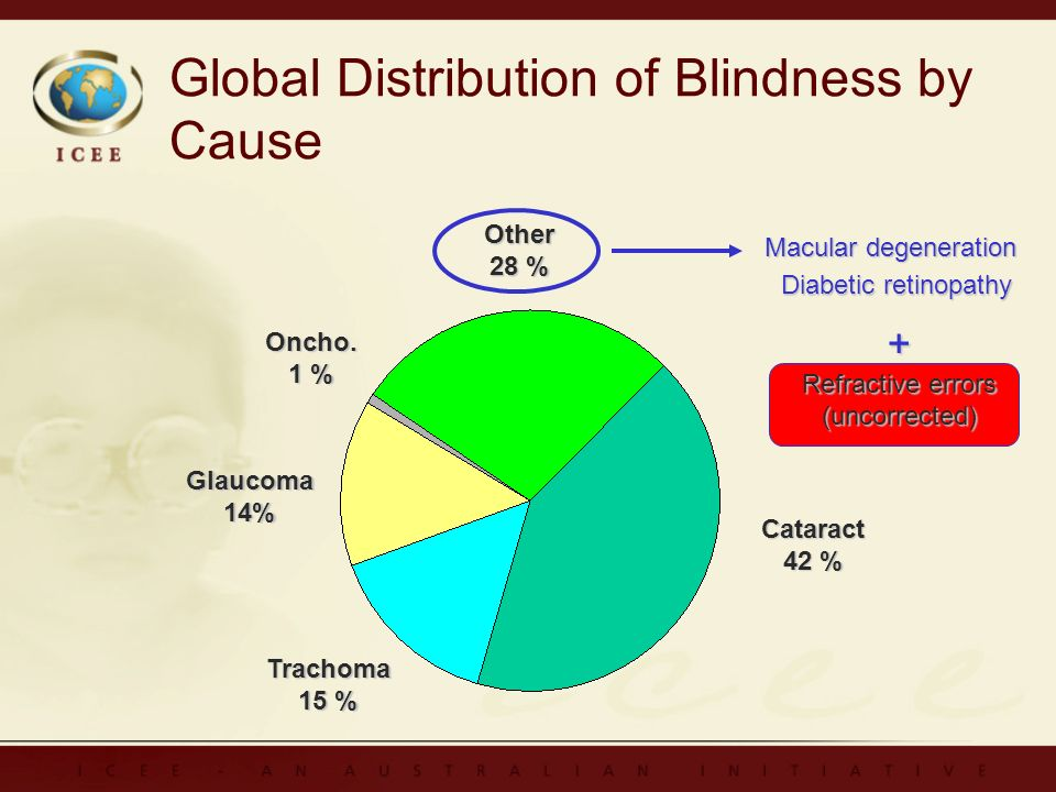 Global Distribution of Blindness by Cause Cataract 42 % Trachoma 15 % Glaucoma14% Oncho.