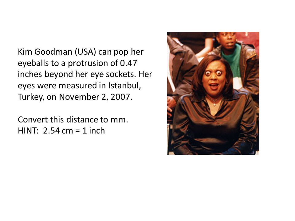 Kim Goodman (USA) can pop her eyeballs to a protrusion of 0.47 inches beyond her eye sockets.