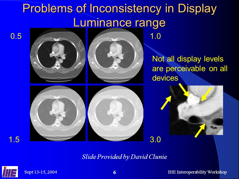 Sept 13-15, 2004IHE Interoperability Workshop 6 Problems of Inconsistency in Display Luminance range 0.5 1.5 1.0 3.0 Not all display levels are perceivable on all devices Slide Provided by David Clunie