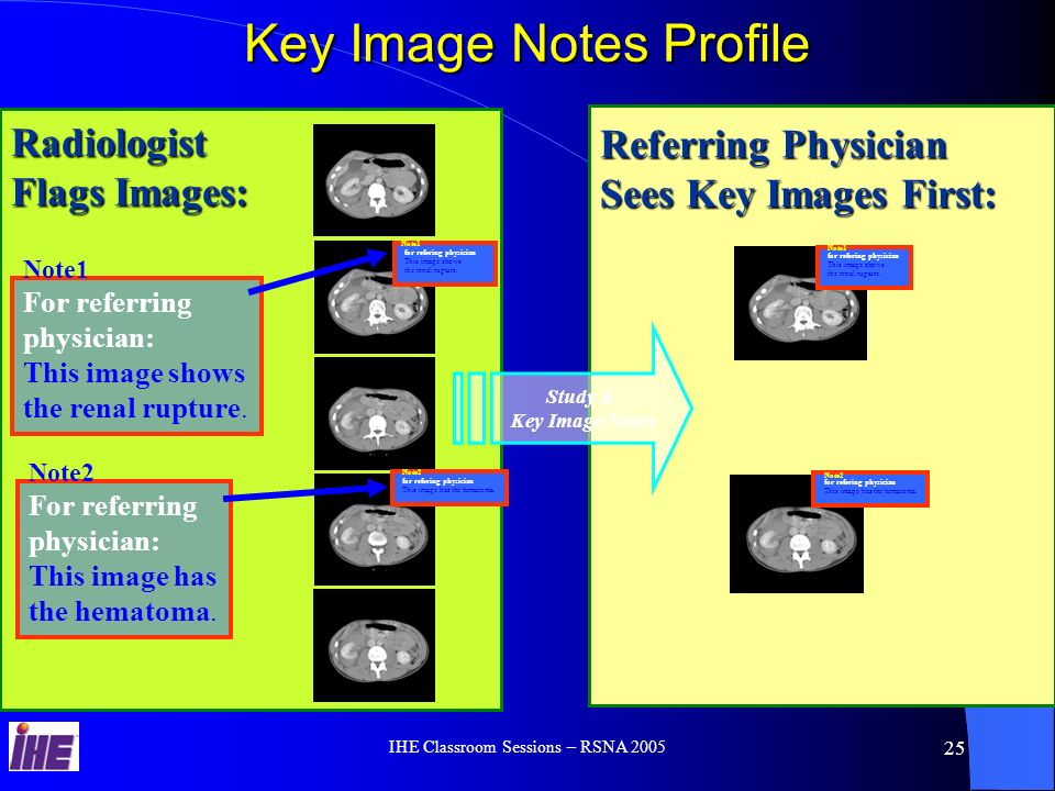 IHE Classroom Sessions – RSNA 2005 24 Simple Image & Numeric Reports Profile Simple Image & Numeric Reports Profile Images Retrieved Preliminary Report Verified Report Report & Images Retrieved Image Manager & Archive Report Verification Images and Exam data presented for diagnosis Reports stored for Network Access Report & Image Review for Patient Care