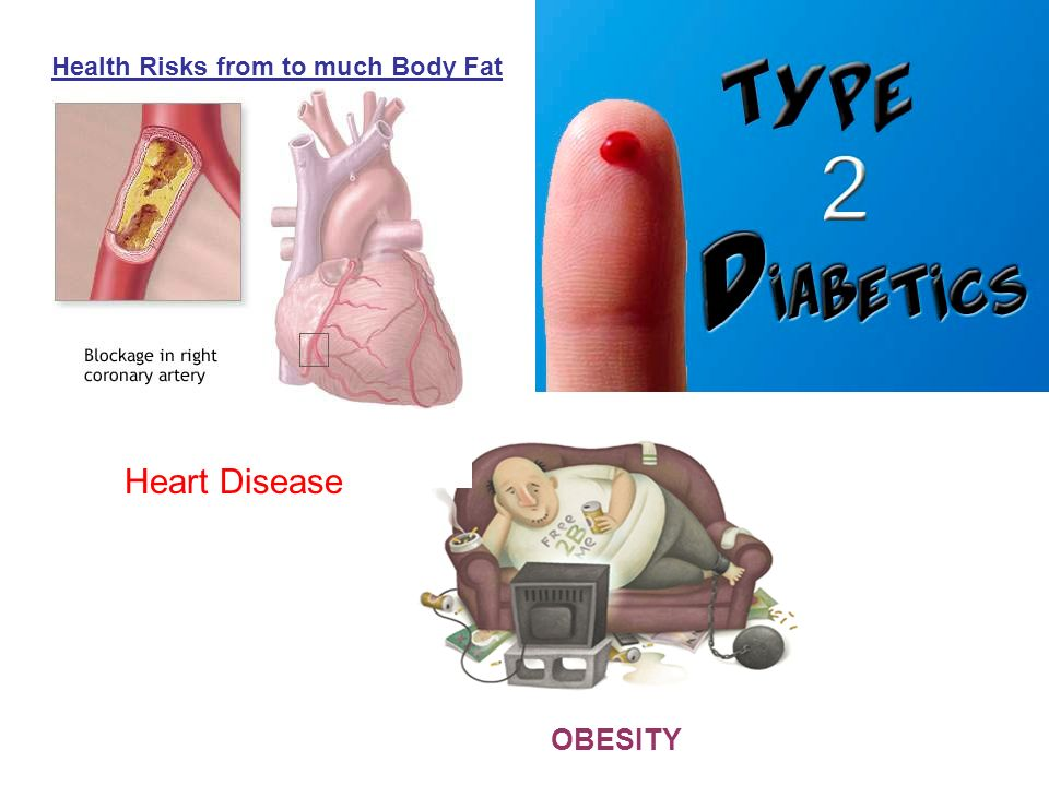 OBESITY Heart Disease Health Risks from to much Body Fat