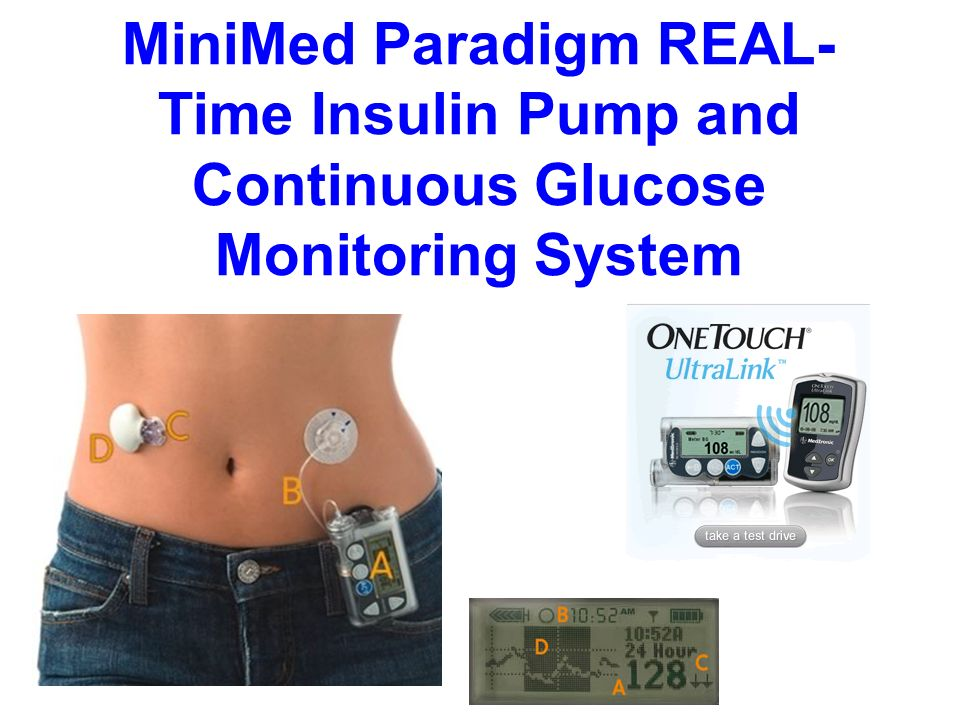 MiniMed Paradigm REAL- Time Insulin Pump and Continuous Glucose Monitoring System
