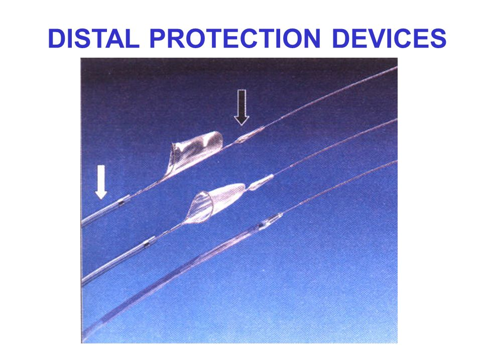DISTAL PROTECTION DEVICES