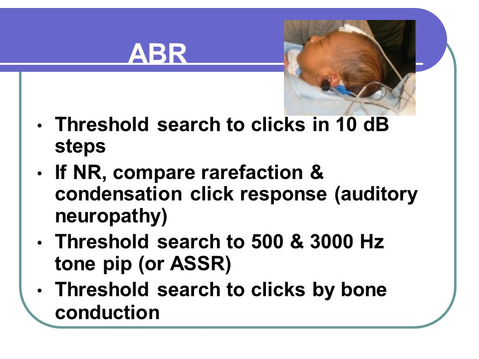 ABR Assessment Threshold search to clicks in 10 dB steps If NR, compare rarefaction & condensation click response (auditory neuropathy) Threshold search to 500 & 3000 Hz tone pip (or ASSR) Threshold search to clicks by bone conduction
