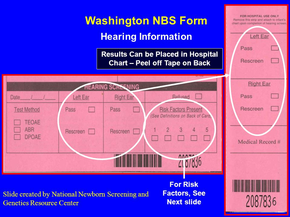 Washington NBS Form Hearing Information Results Can be Placed in Hospital Chart – Peel off Tape on Back For Risk Factors, See Next slide Slide created by National Newborn Screening and Genetics Resource Center