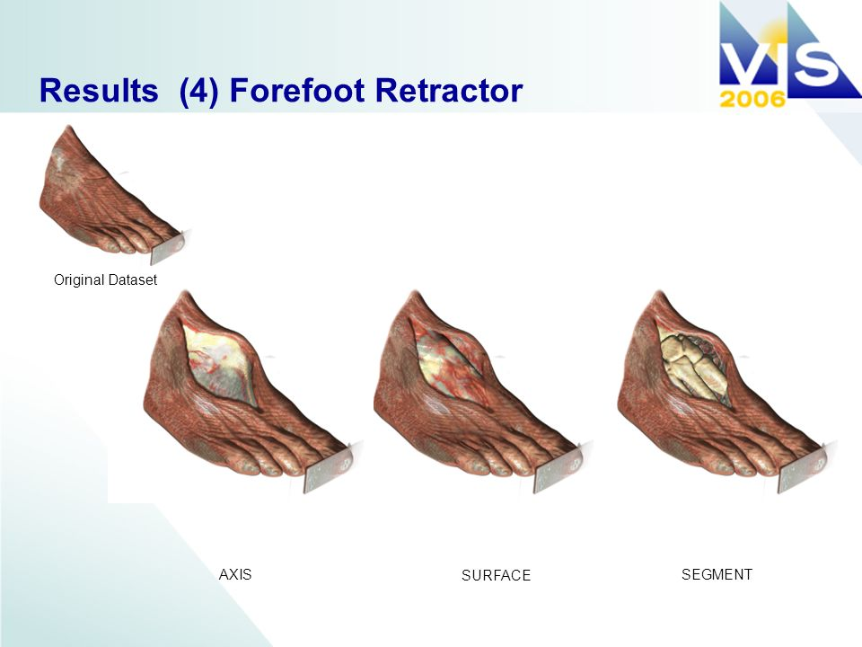 Results (4) Forefoot Retractor AXIS SURFACE SEGMENT Original Dataset