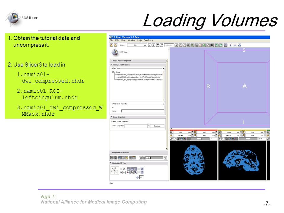 Pujol S, Gollub R -7- National Alliance for Medical Image Computing Loading Volumes 1.Obtain the tutorial data and uncompress it.