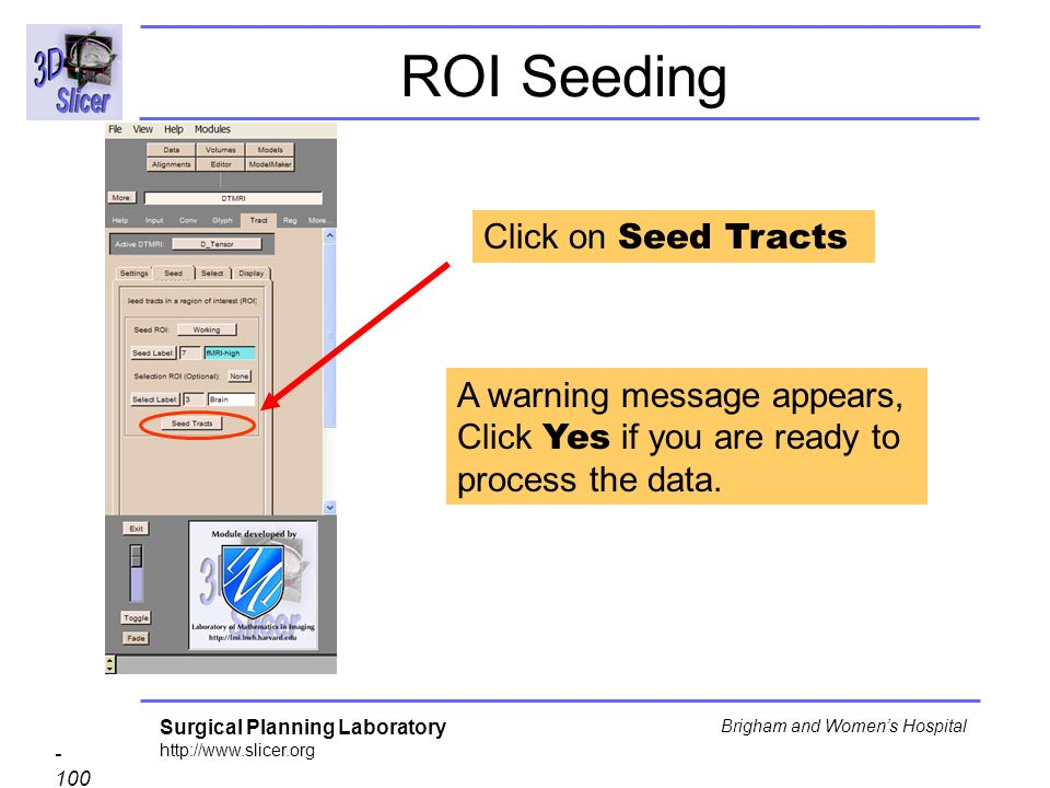 Surgical Planning Laboratory http://www.slicer.org - 100 - Brigham and Womens Hospital Click on Seed Tracts ROI Seeding A warning message appears, Click Yes if you are ready to process the data.