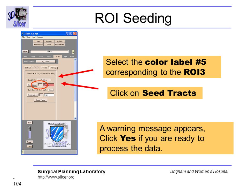 Surgical Planning Laboratory http://www.slicer.org - 104 - Brigham and Womens Hospital ROI Seeding Select the color label #5 corresponding to the ROI3 Click on Seed Tracts A warning message appears, Click Yes if you are ready to process the data.