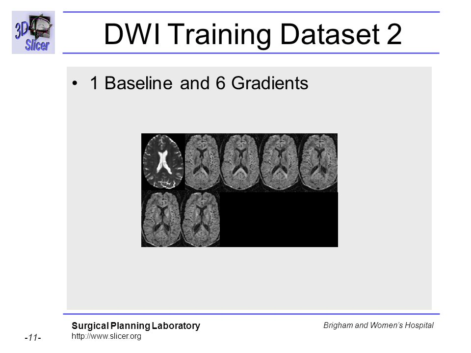 Surgical Planning Laboratory http://www.slicer.org -11- Brigham and Womens Hospital DWI Training Dataset 2 1 Baseline and 6 Gradients