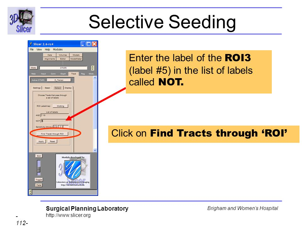 Surgical Planning Laboratory http://www.slicer.org - 112- Brigham and Womens Hospital Selective Seeding Click on Find Tracts through ROI Enter the label of the ROI3 (label #5) in the list of labels called NOT.