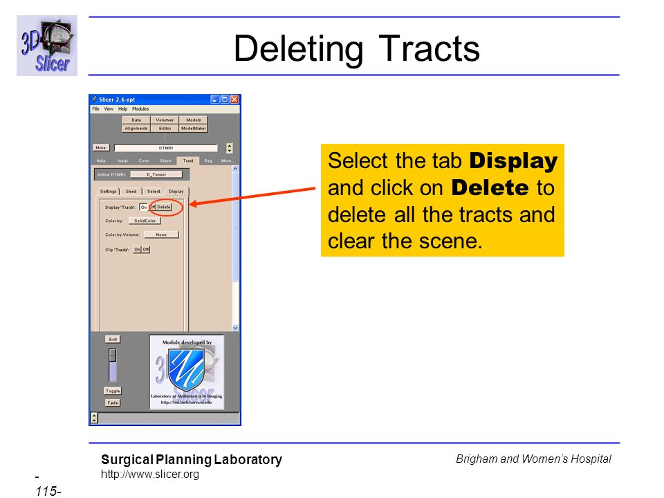 Surgical Planning Laboratory http://www.slicer.org - 115- Brigham and Womens Hospital Deleting Tracts Select the tab Display and click on Delete to delete all the tracts and clear the scene.