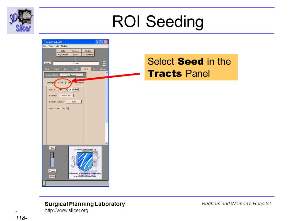 Surgical Planning Laboratory http://www.slicer.org - 118- Brigham and Womens Hospital ROI Seeding Select Seed in the Tracts Panel