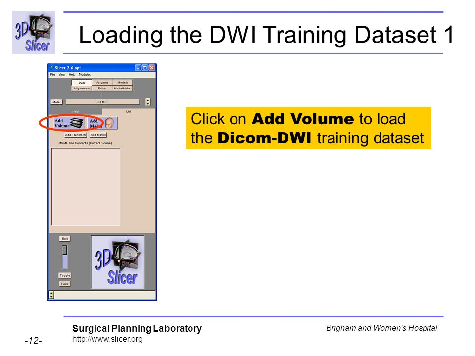 Surgical Planning Laboratory http://www.slicer.org -12- Brigham and Womens Hospital Loading the DWI Training Dataset 1 Click on Add Volume to load the Dicom-DWI training dataset