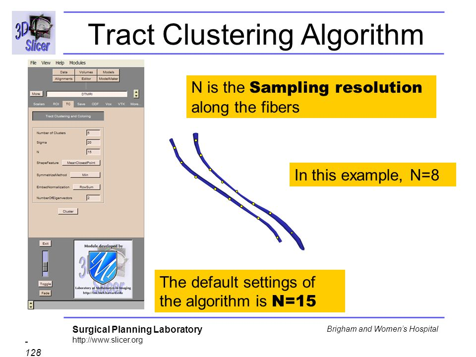 Surgical Planning Laboratory http://www.slicer.org - 128 - Brigham and Womens Hospital Tract Clustering Algorithm N is the Sampling resolution along the fibers In this example, N=8 The default settings of the algorithm is N=15
