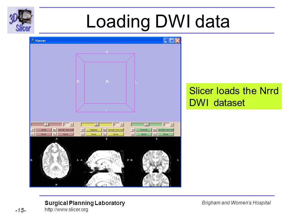 Surgical Planning Laboratory http://www.slicer.org -15- Brigham and Womens Hospital Loading DWI data Slicer loads the Nrrd DWI dataset